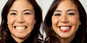 Professional Teeth Whitening for Safe and Effective Results